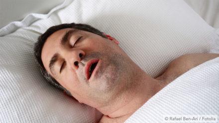 Very Loud Snoring? Is it a sleep related breathing disorder?