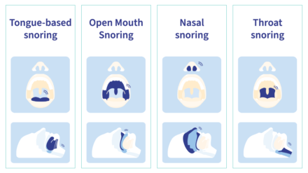 Stop Snoring! What causes snoring and what can be done to stop it?