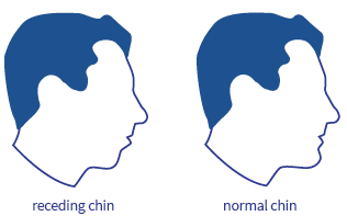 Receding chin and snoring