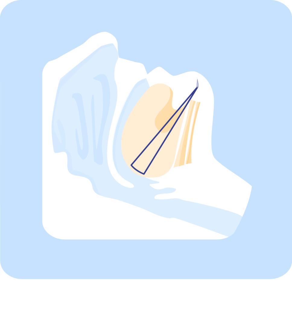 Silicone tongue base implant